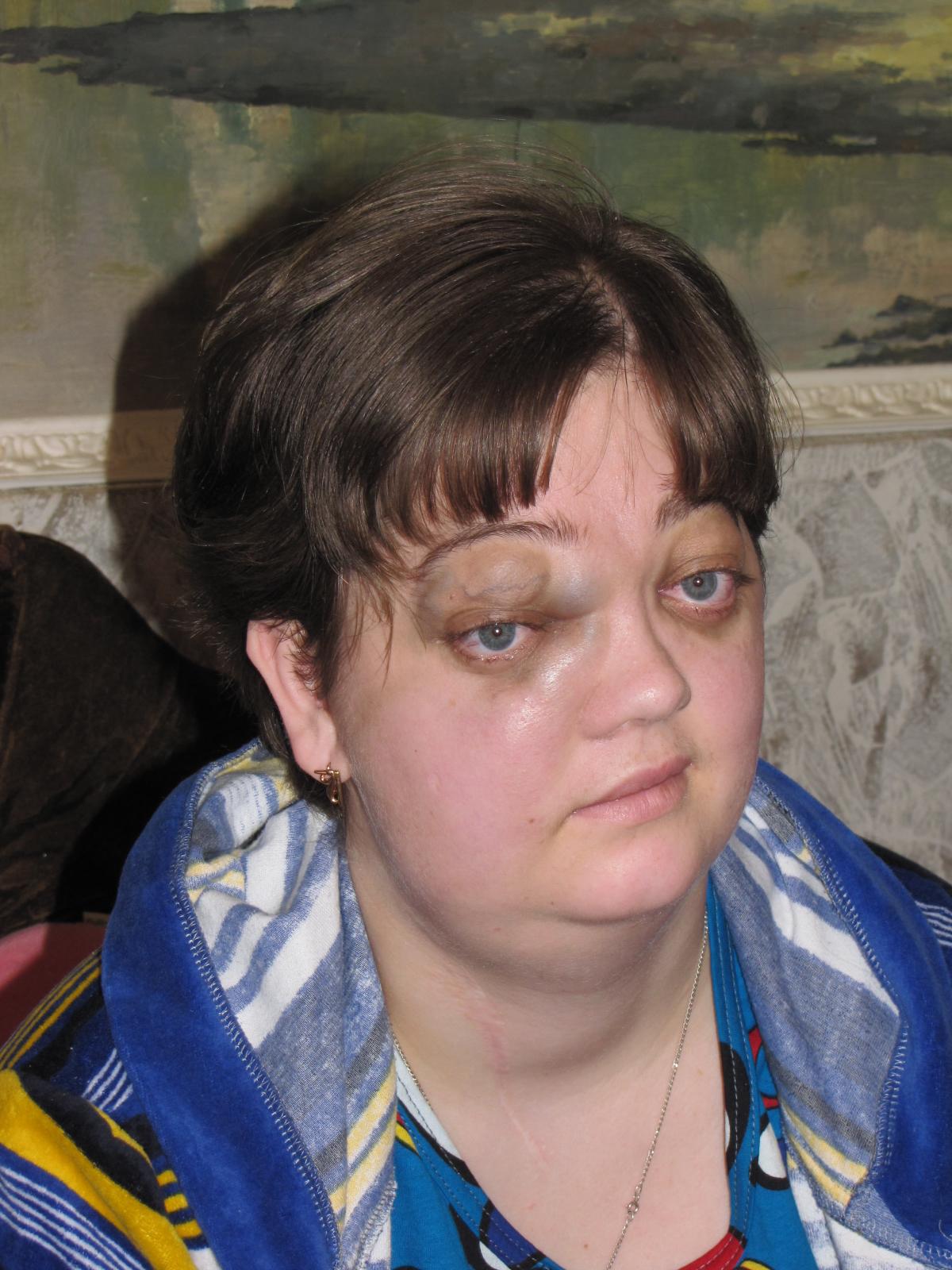 Дисплазия Фиброзная фото