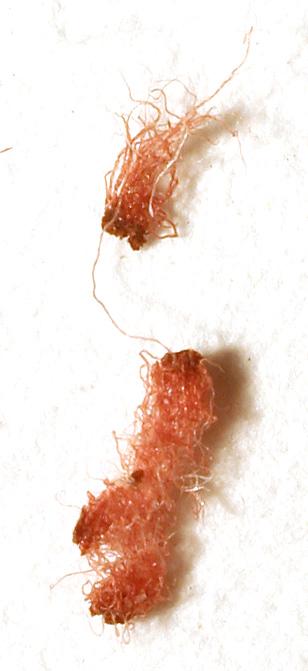 antibiotiki-pri-ostrom-tsistite-s-krovyu