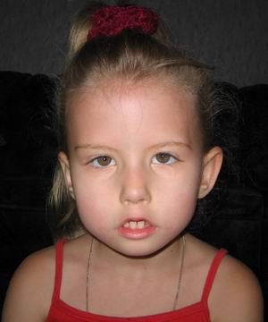 фото синдром мебиуса