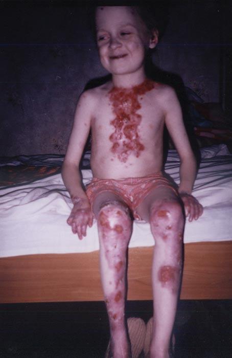 Эпидермолиз Врожденный Буллезны фото